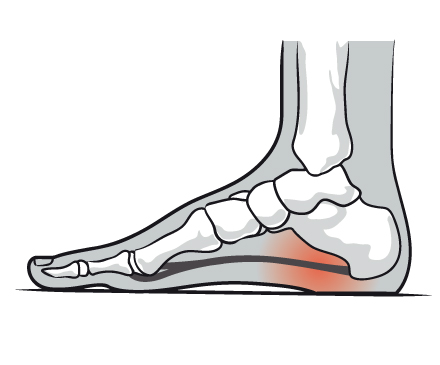 fasciitis plantar treatment