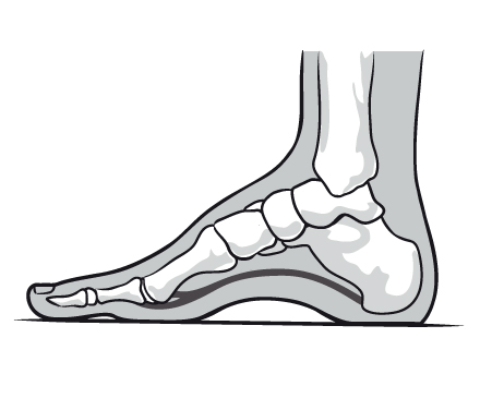 High-Arched Foot (Cavus Foot) image