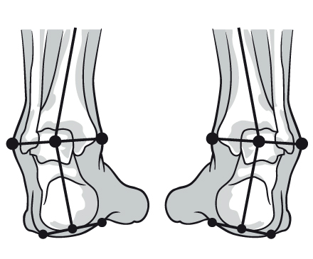 Over-Supination image